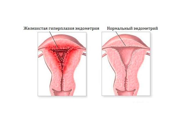 Железисто-кистозная гиперплазия эндометрия: чем опасна, методы лечения