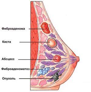 Гипоэхогенное образование в молочной железе: что это значит? Как действовать?