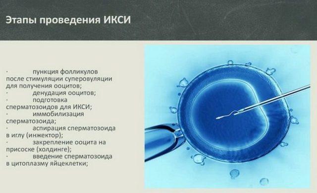 Вспомогательные репродуктивные технологии: методики и особенности их применения