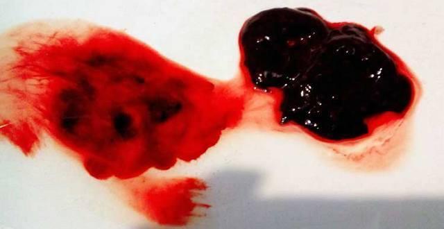 Обильные месячные со сгустками (причины): сильное кровотечение (как остановить)
