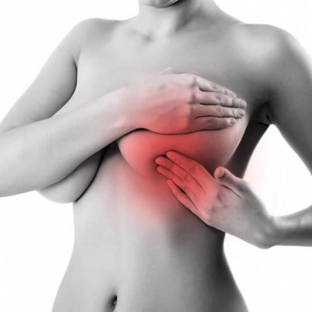 Увеличение (набухание) груди перед месячными: уплотнение в молочной железе