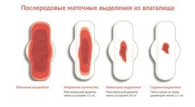 Выделения после кесарева сечения сколько длятся: кровянистые, гнойные, желтые