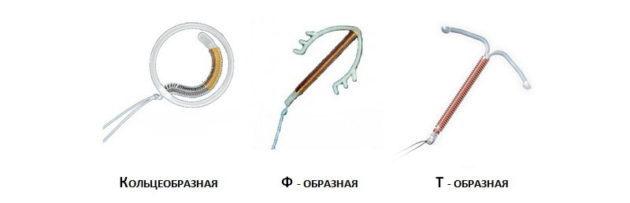 На какой день месячных ставят спираль (до месячных или после): удаление спирали без месячных