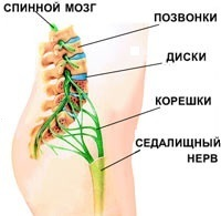 Почему перед месячными болит поясница (спина): ноет, ломит (причины)