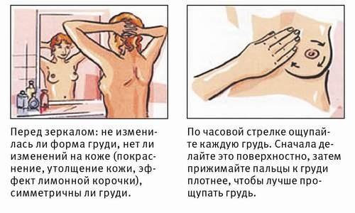 Почему болит грудь во время месячных (Причины)