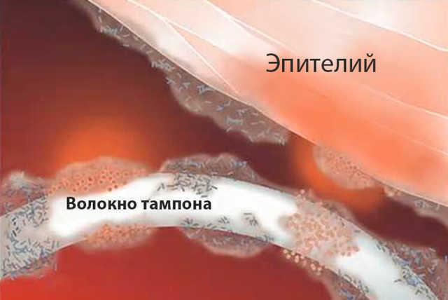 Тампоны Тампакс: виды, как правильно вставить (видео инструкция)