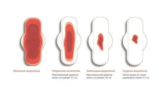 Норколут для вызова месячных: инструкция по применению для отсрочки как принимать