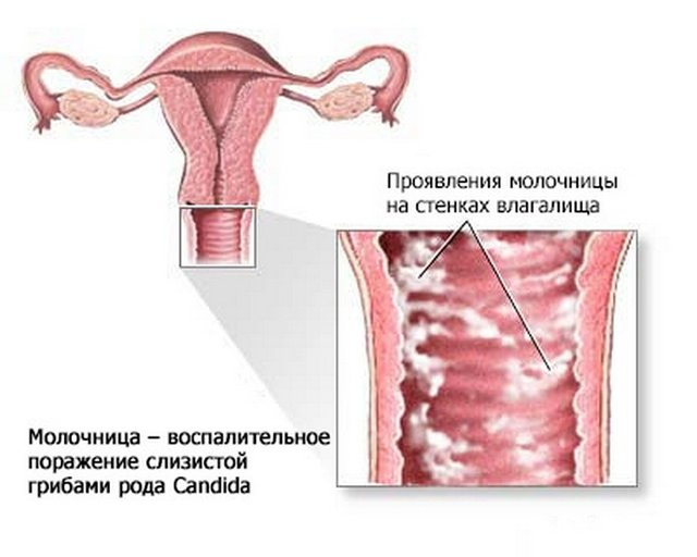 Зеленые выделения при беременности: во втором триместре, третьем триместре, на ранних сроках