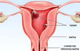 Тошнит после месячных: идут месячные и тошнит могу ли я быть беременной