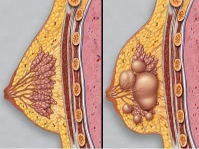 Почему болит грудь после месячных: месячные прошли а грудь болит