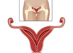 Месячные после выскабливания когда пойдут: после чистки матки, абортивного выскабливания, обильные, первые